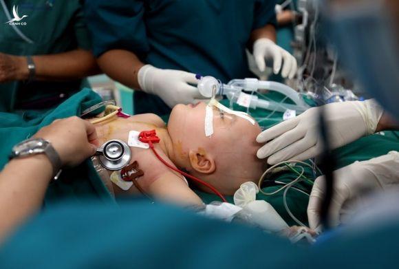 Những khoảnh khắc căng thẳng, xúc động ca phẫu thuật tách cặp song sinh - ảnh 7