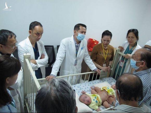 Gần 100 y bác sĩ chuẩn bị mổ tách dính ca song sinh phức tạp - ảnh 2