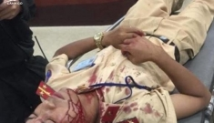 Đại uý CSGT bị người vi phạm dùng gạch tấn công nhập viện