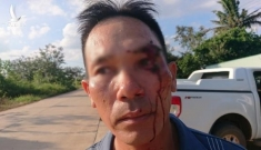 Vừa tố cáo cán bộ địa chính nhận hối lộ, người dân bị đánh rách mặt