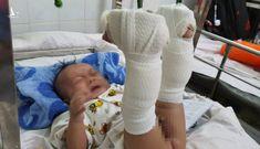Con trai 4 tháng tuổi nghi bị cha ruột 'chơi đá' đánh đến xuất huyết não, gãy chân