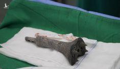 Bệnh viện Chợ Rẫy dùng Titanium in 3D trám lỗ hổng 11cm ở xương bệnh nhân ung thư