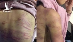Công an vào cuộc vụ nữ sinh bị mẹ đẻ và người tình bạo hành dã man
