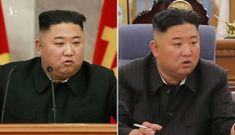 Người dân Triều Tiên đau lòng vì lãnh đạo Kim Jong-un sụt cân?